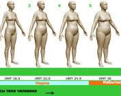 Риск ожирения и его степени